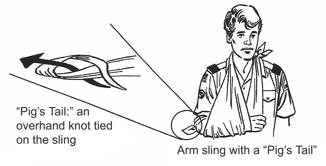 How to tie a sling 37
